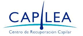 Implantes Capilares Capilea Argentina: recuperación de pelo y tratamiento de la calvicie